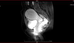 典型案例—4月2日腺肌症一例