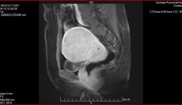典型案例—4月17日肌瘤一例
