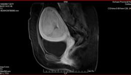 典型案例—6月8日子宫肌瘤一例